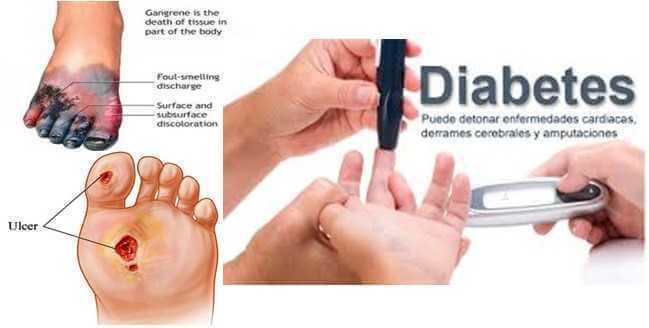 Cara Mengobati Luka Diabetes Dengan Tepat